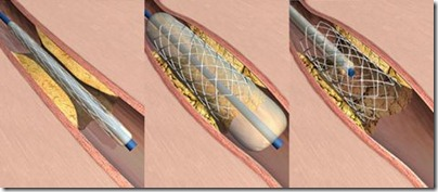 coronary-stent